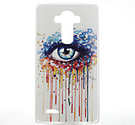 For LG Case Pattern Case Back Cover Case Cartoon Hard PC LG